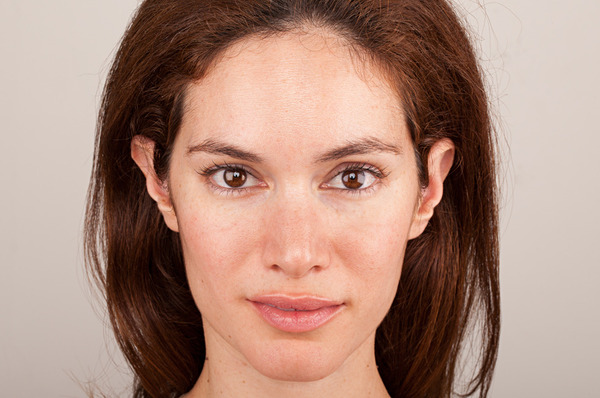 How to Deal With Face Redness