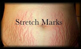 HOW TO GET RID OF STRETCH MARKS: NATURAL & AFFORDABLE REMEDY!PhillyGirl1124 on YouTube
