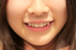 "Japan's Latest Beauty Trend: Paying Money To ""Ruin"" Your Teeth"