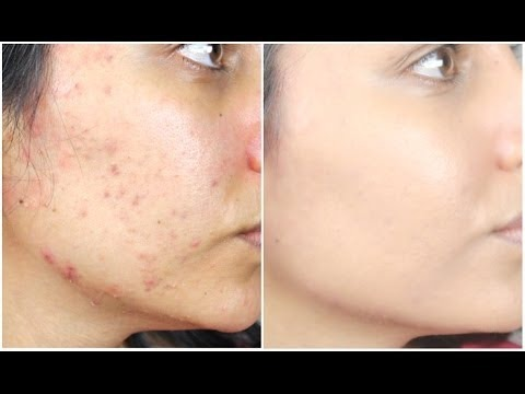 Product for acne scars at drugstore