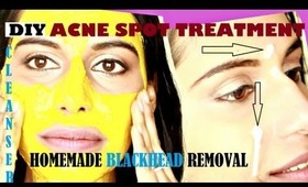 DIY ACNE TREATMENT & BLACKHEAD REMOVAL with Spot Treatment + Deep Cleanser at home (home remedies)