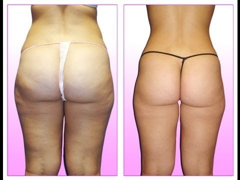 Can I get rid of cellulite