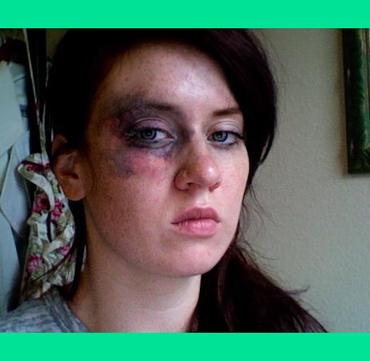 Bruised Face Makeup Tutorial | Www.imgkid.com - The Image Kid Has It!