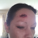 Gash To The Head Stitched Up