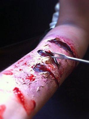 open wound.