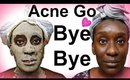 DIY Bentonite Clay SkinCare Routine   Best Face Mask For Acne and Blemishes