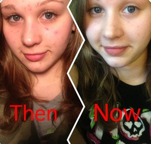Thanks to more natural skin care, I now have clear skin!