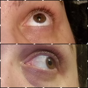 2 week progress on circles and lashes using the Ordinary and castor oil