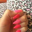 Pinky ;)