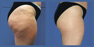 If you choose the right clinic or expert, you will be able to obtain the best solutions for your problems. If you are suffering from cellulite problem, this is probably the right content. Here you will be able to find some comprehensive information on some of the best treatment solutions and products available in the market to treat your issue. Although there are numerous products and services available in the market, not all can offer you the best results. On the other hand, if you choose low quality products, you may have to suffer from negative effects as they contain a lot of chemicals and substances. In order to stay away from these products and find the right solution for your problem, looking for the right cellulite treatment in Adelaide after a thorough research is very important. When it comes to cellulite removal, there are some top clinics and experts operating in the market today who are offering advanced services for the customers. Ultrasound cavitation is one such amazing method that can offer you the best results within a short time. This is a new aesthetic treatment opted by most of the people who are looking for an option to get rid of the cellulite problems.  Know more about the Best Treatment Procedure:  Although there are different types of treatments and products available in the market, Ultrasound cavitation is considered as the best and the most opted option. This is undoubtedly due to the amazing results it is able to provide for the patients. The procedure makes use of the leading edge technology, which converts fat into liquid that can be absorbed by the natural filtration system of the body. The process is also considered to be quite faster and result oriented when compared to other options available in the market. Most of the people have a misconception that ultrasound cavitation is a process to lose weight. However, it is important to understand that, the process is not for losing weight, but to shape up the body.   The Best Method for your Needs:  Ultrasound cavitation is considered as one of the best treatment procedures available in the market for cellulite problems. However, in order to obtain the best results, it is very important to choose the right clinic that will be able to understand your needs and offer you the best solutions. When you choose the right experts for the procedure, they will perform a thorough research and ensure that the cellulite treatment Adelaide procedure is completely suitable for your skin and body.  Author Resource:  This article is written by Albert Batista. He has written many articles related to skin and beauty care issues. He wants to create awareness in people especially in issues related to healthcare, which most of the people lack. His main idea in this article is to put in all the necessary information for the people which they can refer to at the time of need and searching cellulite treatment Adelaide: http://www.celcius.com.au