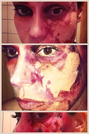 burned face at Halloween
