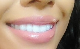 Teeth Whitening: Achieve a Brighter Whiter Smile