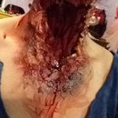 Neck Wound (different angle)