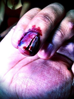 chipped nail.