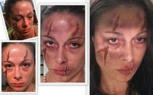 FX bruises scars flesh shreads