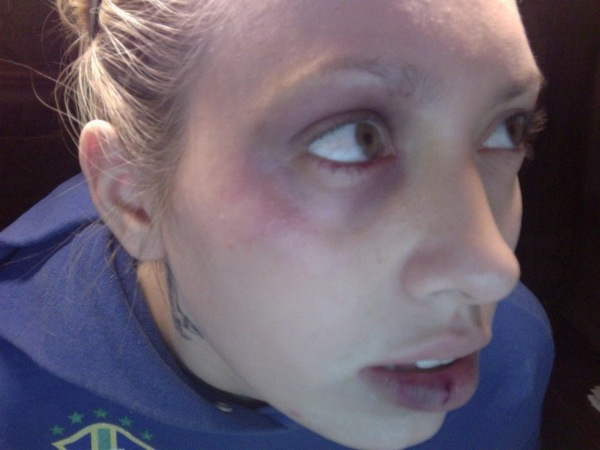 Black Eye And Busted Lip Closeup Maria S S
