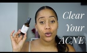 Skincare Series- Part III: Overnight Acne- Clearing Routine