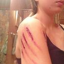 Werewolf scratch