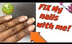 My Nails Keep Breaking! 😫 How I fixed MY broken nail