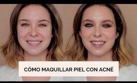 Cómo maquillar piel con acné + Ahumado suave