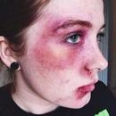 Facial Bruising and Bleeding SFX Makeup (Part 1)