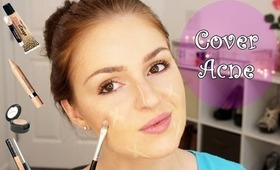 How to Cover Acne and Pimples