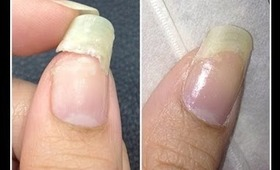 Tea Bag Nail Repair by The Crafty Ninja