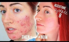 My Accutane Update 2018 (8 Months!) With Before & After | Jess Bunty