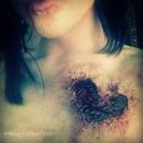Bloody, broken heart