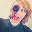 Gouged Eye