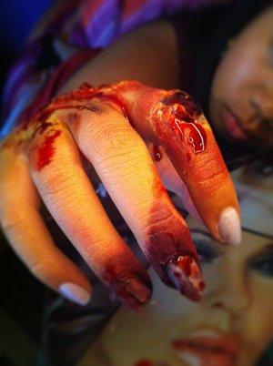 """She calls this """"I had a moment"""" haha scraped hand & chipped nail"""