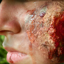Bullet wound