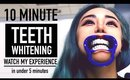 10 Minute Teeth Whitening ♥ Quickest Whitening at Dentist Cost & Review  ♥ Philips Zoom Quickpro