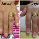 Antes e depois do acrílico