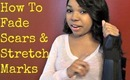 How To Fade Scars & Stretch Marks Naturally - Ms Toi