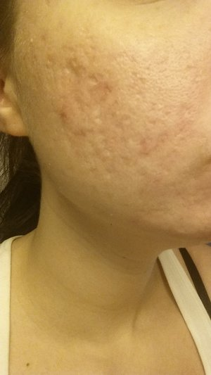 Primer And Acne Scars Beautylish