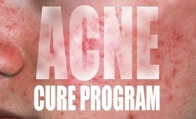 THE ACNE CURE PROGRAM! FAST RESULTS!