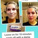 Skin glow tip! With Desitin!