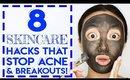 8 Skincare Hacks That Stop Acne & Pimples!