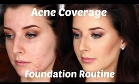 Full Covergae Foundation Routine For Oily Acne Scarred Skin + Contour Routine