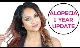 Alopecia 1 Year Update | Alopecia Awareness