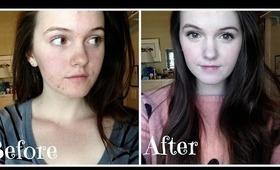 Pale Acne Prone Skin Foundation Routine