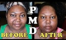 PMD (Personal Microderm) Review and Demo