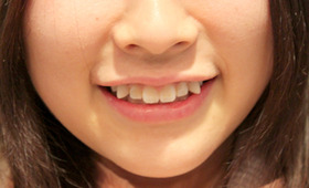 """Japan's Latest Beauty Trend: Paying Money To """"Ruin"""" Your Teeth"""