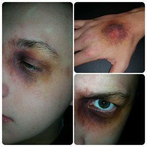 Realistic bruise and black eye makeup. Visit my Facebook for more regular updates and more images! www.Facebook.com/emilyjaynemakeup