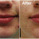 Advanced Options for Acne Scar Treatment