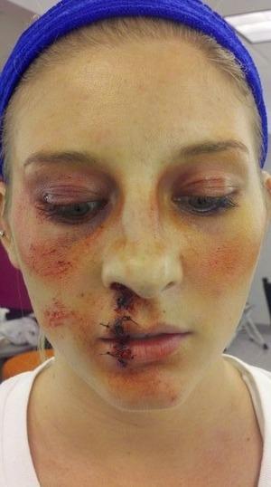 battered face plus broken nose