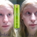 Skin 79 green before and after!