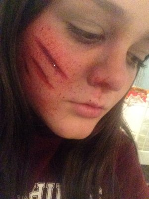 First try at rigid collodion :)