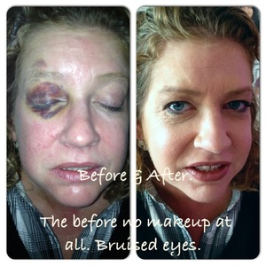 Poor girl with bruised eye. Left: no makeup. Right: after my magic ;)
